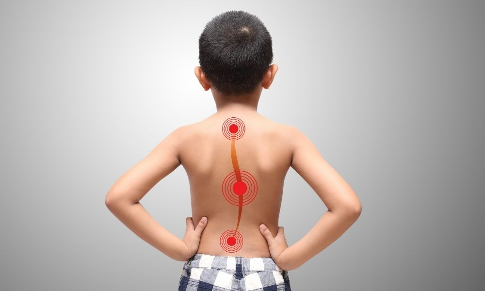 What Does Bracing for Scoliosis Look Like?
